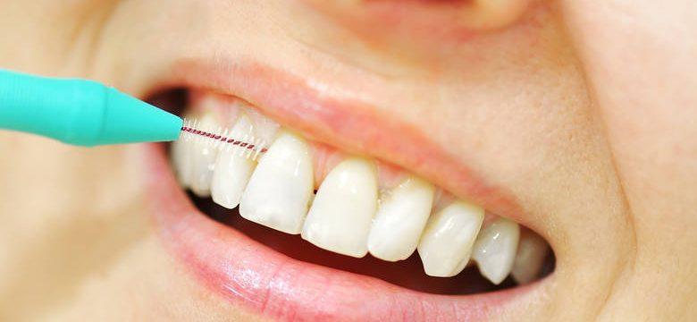 Μεσοδόντιο Βουρτσάκι καθαρισμός δοντιών